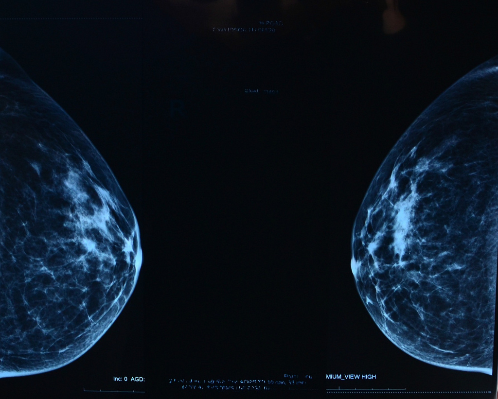 Mammogram by slgckgc, on Flickr